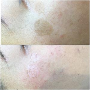 Vasculyse Treatment - sun spot removal